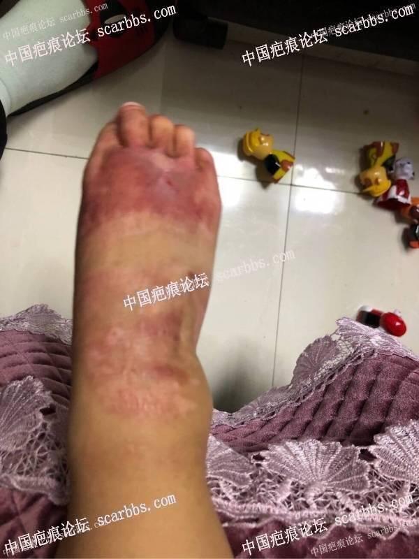 脚背烫伤一年半的恢复效果