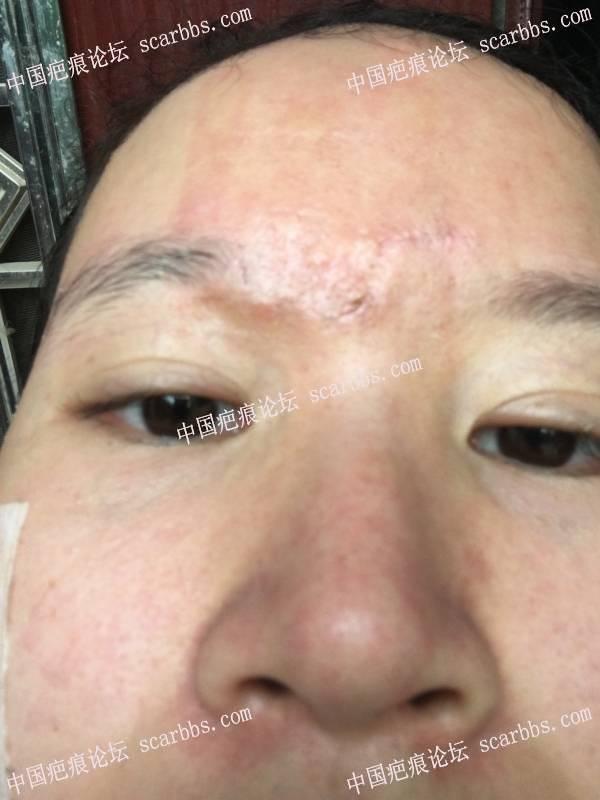 面部、额头疤痕切除一个月零五天