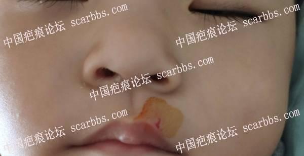 嘴部磕伤三角口,会留疤吗