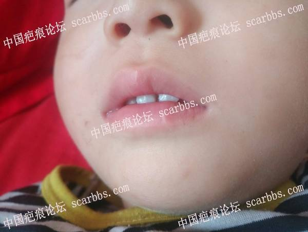 嘴唇明显凸起白疤,笑得时候很宽