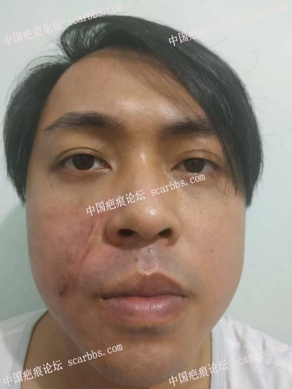 面部疤痕7月25日在杨教授那里做了切除手术