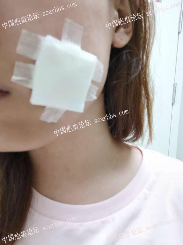 脸部凹陷疤痕切缝治疗