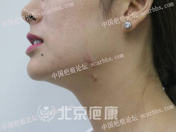 湖北陈女士多部位疤痕疙瘩8年反复发作,直到遇到了北京疤康……