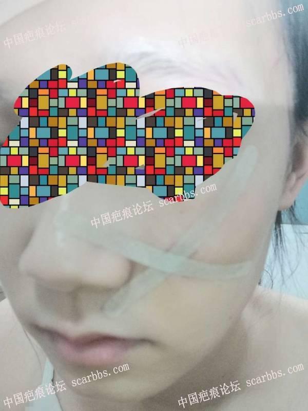 2019年9月26日杨教授脸部转瓣和w改型
