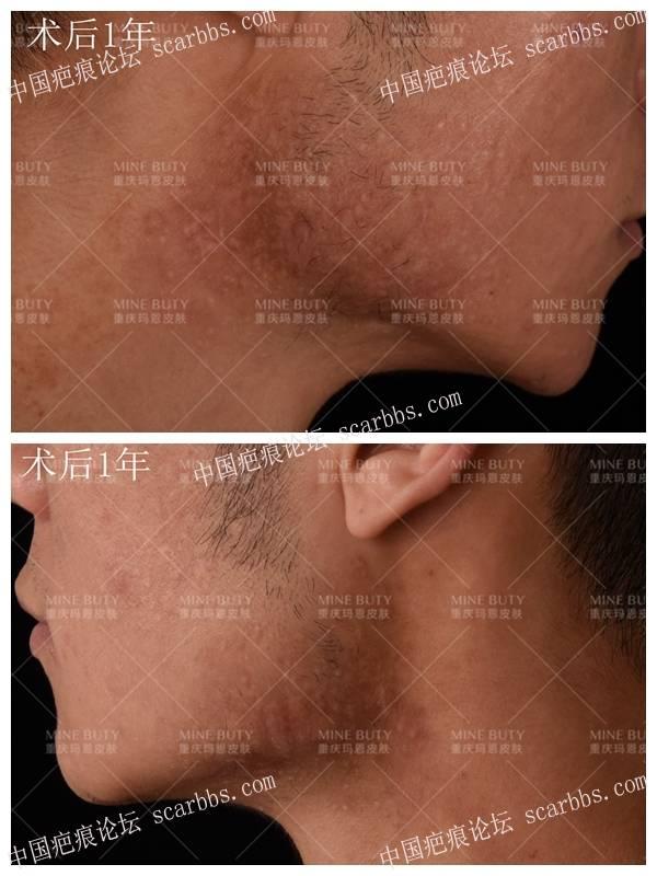 下颌部位瘢痕疙瘩该如何治疗?