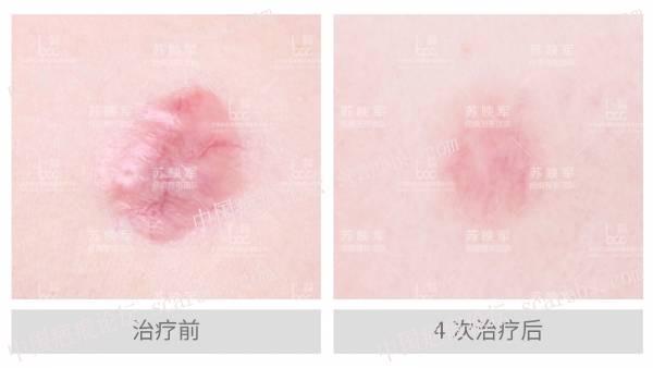 前胸疤痕疙瘩治疗反馈