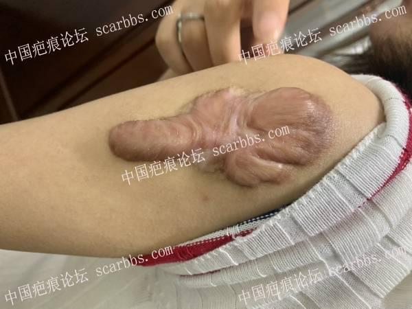 小时候打疫苗长的疤痕疙瘩找苏映军教授切了