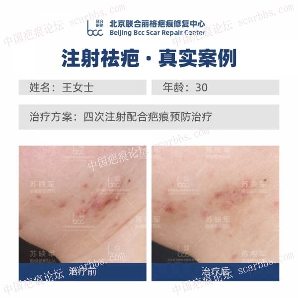 疤痕疙瘩患者案例招募周,每月第三周,仅限5名