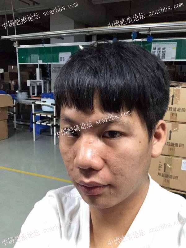 鼻子旁边有个疤痕,明显怎么去掉啊