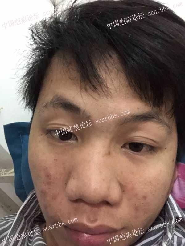 面部疤痕,大家能不能推荐一下应该用什么方法去掉?