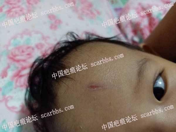 宝宝额头凹疤,伤口四周发黑,怎么办?