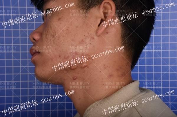 疤痕体质的人如何治疗毛囊炎?