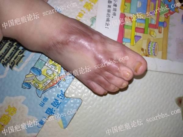 脚背烫伤9个月后,使用疤痕平修复记录 儿童疤痕,烫伤疤痕,疤痕增生,疤痕平反馈,