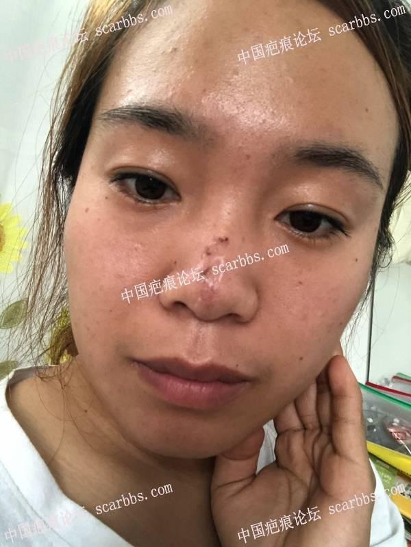 鼻部二十多年的凹陷疤痕切除了