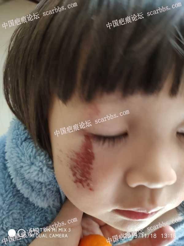 两岁多宝宝摔伤,脸上擦掉一块皮,心痛