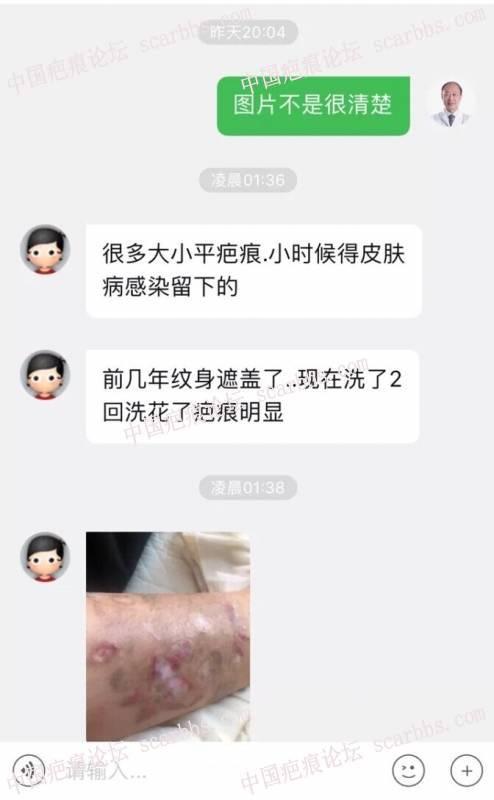 吴医生我的疤痕怎么修复比较好?