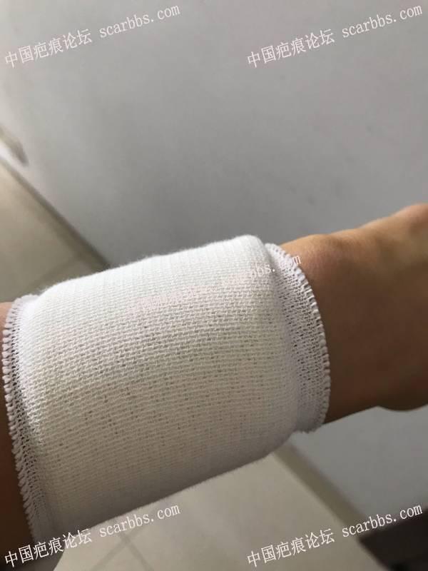 手臂疤痕,今天终于切缝了