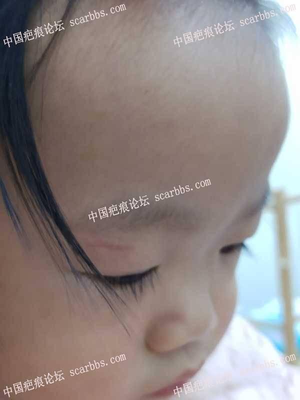 眼皮上方拆线10天,如何防止疤痕变宽?