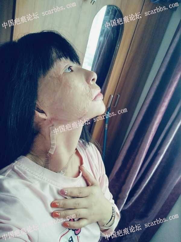 扩张器皮瓣移植修复