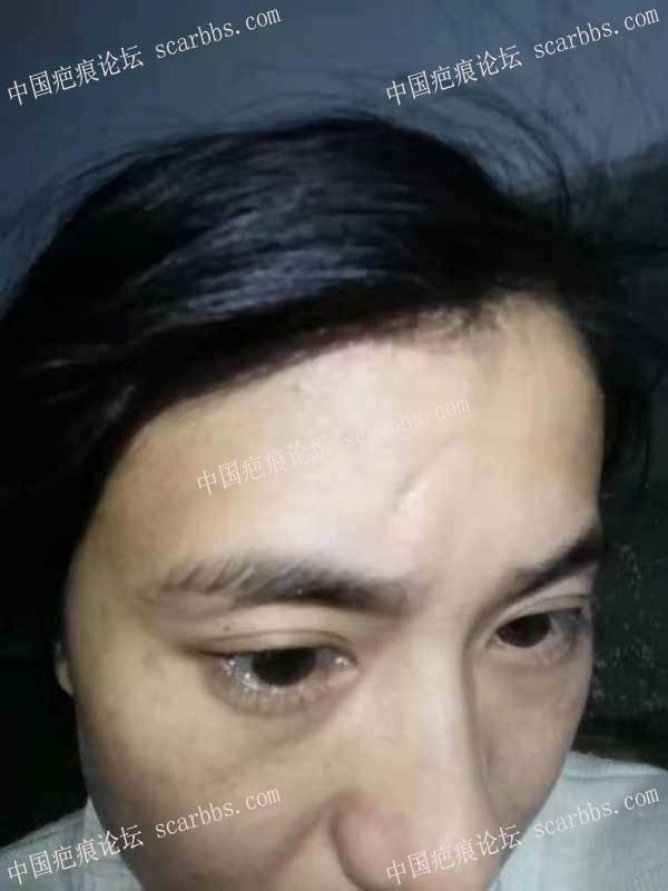 额头的凹陷疤痕求助修复方法