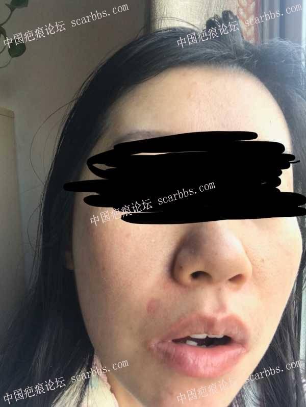 面部点痣疤痕两个月了,怎么治疗?