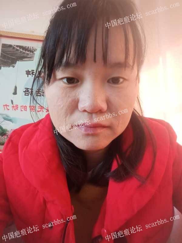 多年的面部烧伤疤痕,求助