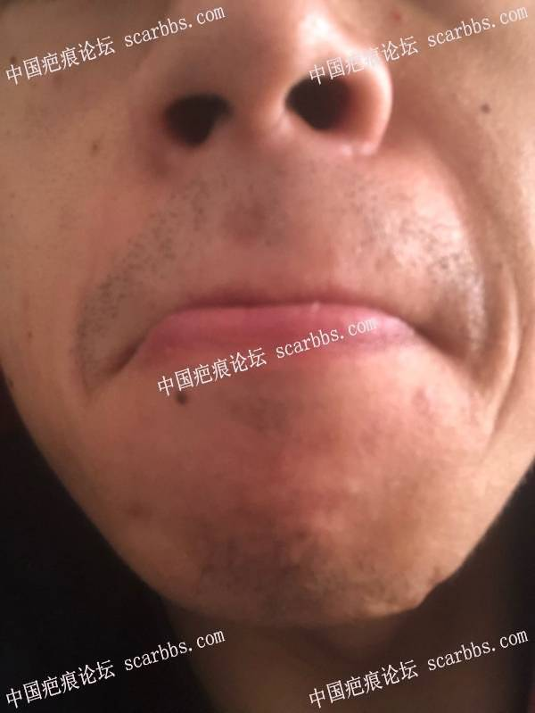 鼻子下面的摔伤疤痕一个月了,要注意什么?