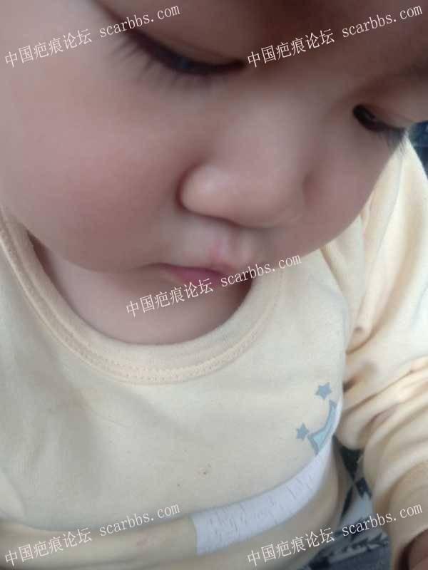 宝宝上嘴唇缝针,求祛疤经验