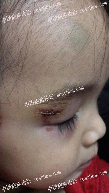 宝宝眼皮磕伤第二天,求无痕护理