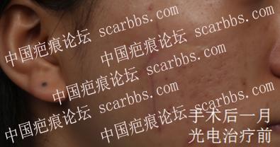 伍勇医生做的美容切缝手术+光电治疗!面部疤痕恢复很好,非常满意! 疤痕,凹陷疤痕,面部疤痕,