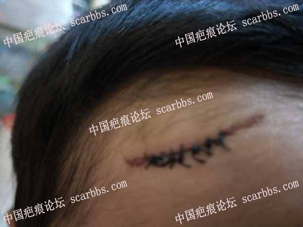 额头长长的疤痕,开始抗疤之路啦