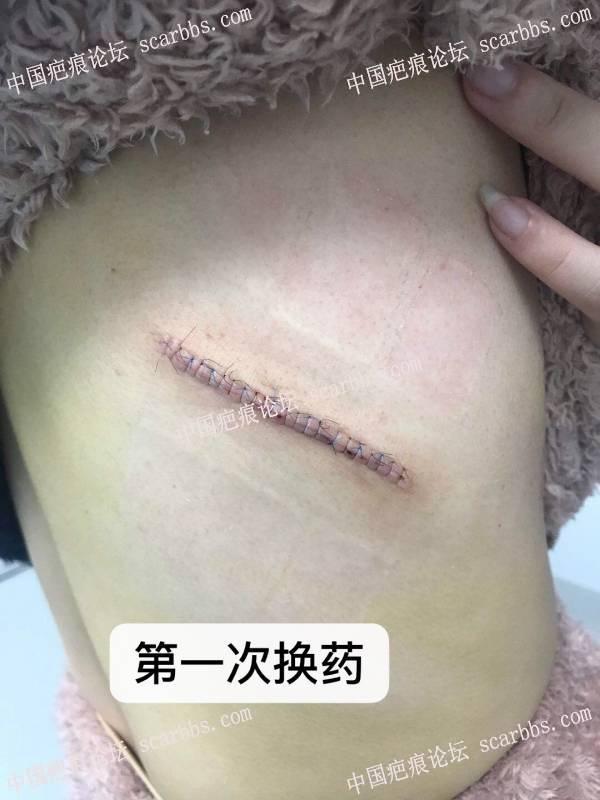 右侧后背十年疤痕疙瘩,手术切除配合放疗