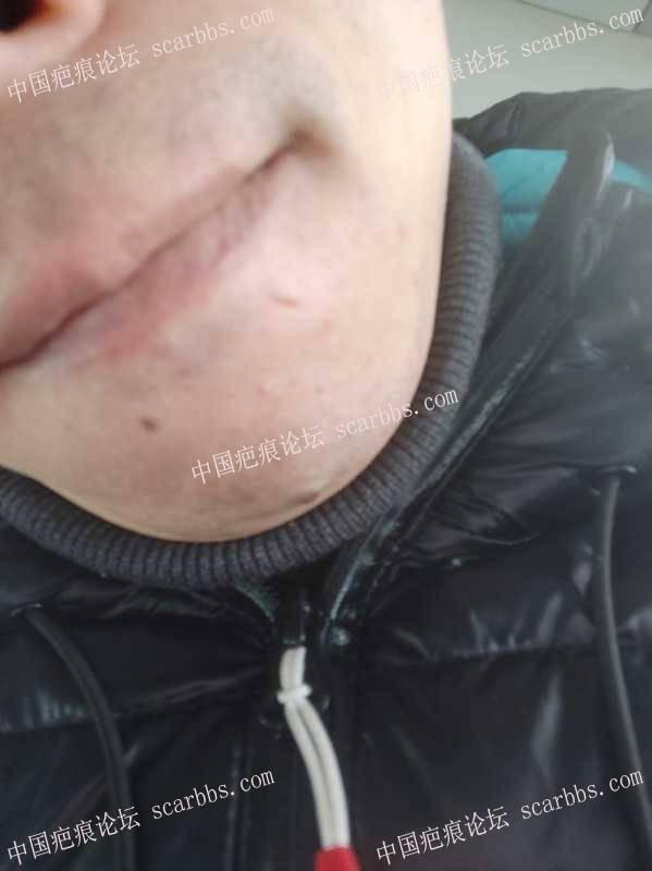 急求小凸起疤痕增生治疗方案