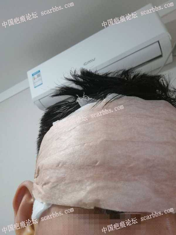 痘坑治疗过程分享(切缝+脂肪填充+机械磨削)