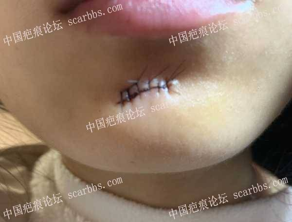 下巴圆形疤痕拆线第一天有凹陷