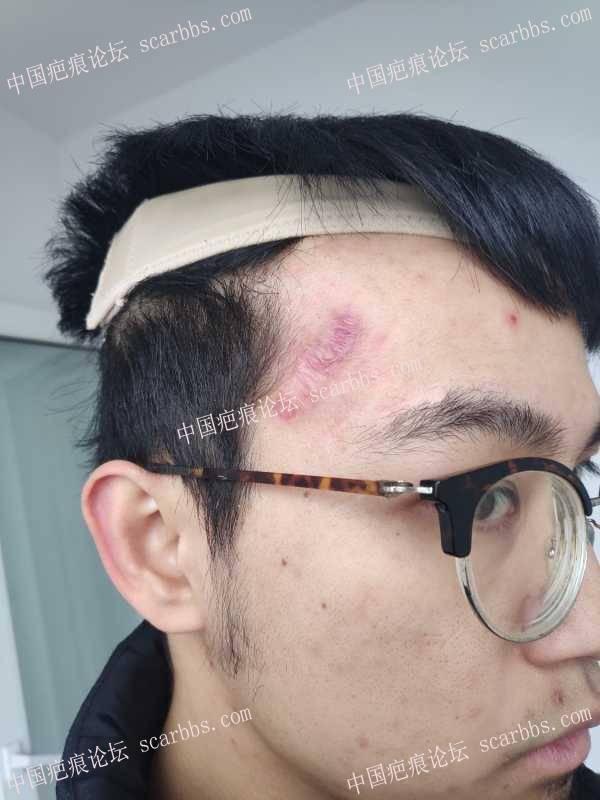额头加压后皮肤褶皱明显,疤痕稳定后会有改善吗?