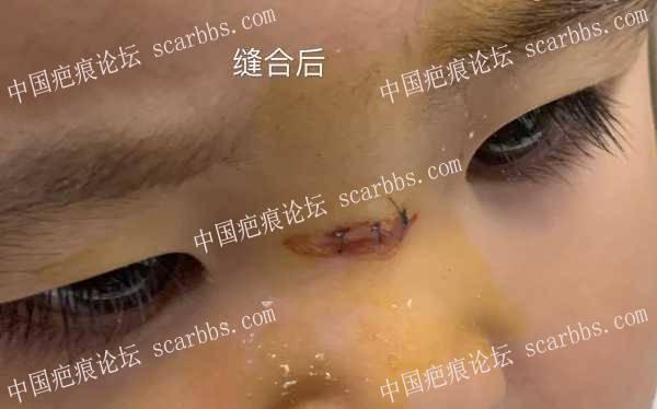 宝宝鼻梁疤痕凹陷增宽,早期做激光效果怎么样?