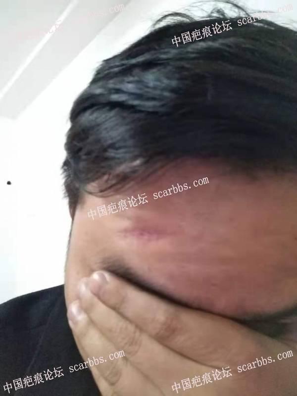 2020年1月16额头凹陷疤痕在杨教授诊所切缝
