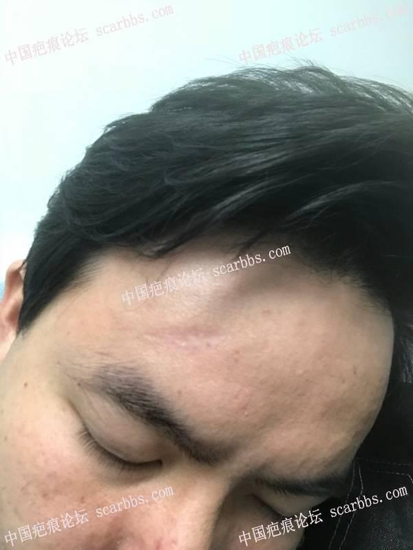 2020年1月16额头凹陷疤痕在杨教授诊所切缝 凹陷疤痕,凹陷,手术