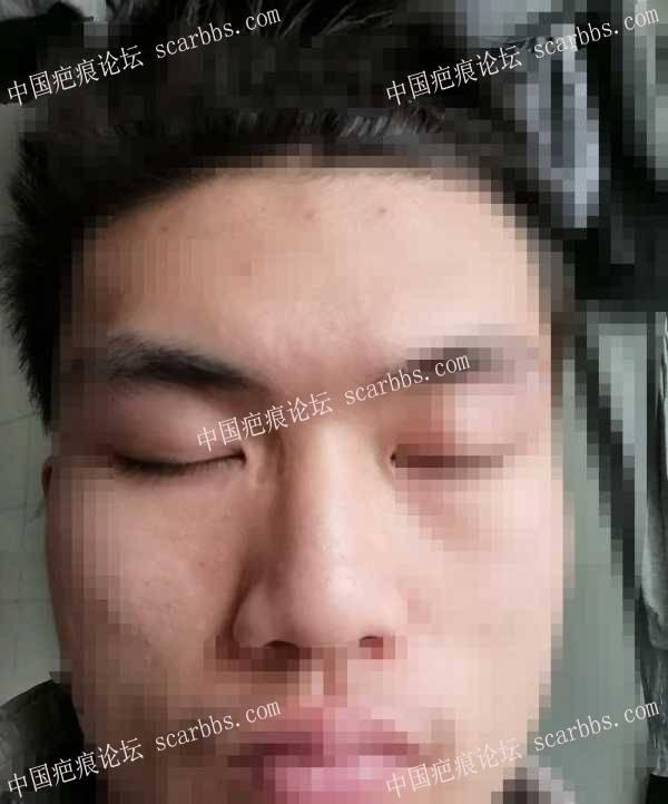 脸部凹陷性色素沉着疤痕,怎么治疗能改善?