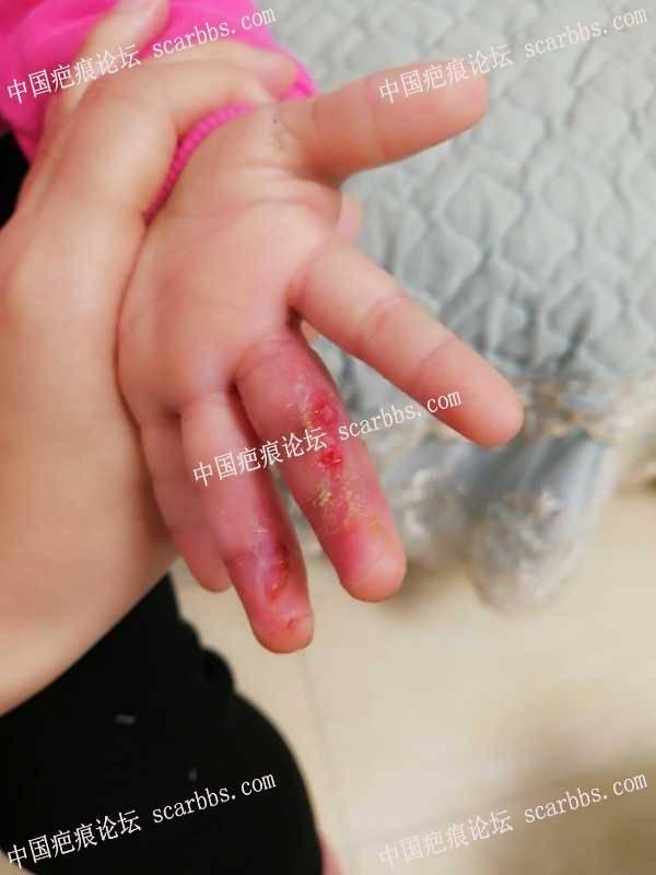 宝宝手指被跑步机磨伤抗疤中
