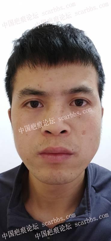 小时候药水点痣留下的面部疤痕,请问有什么方法可以改善?