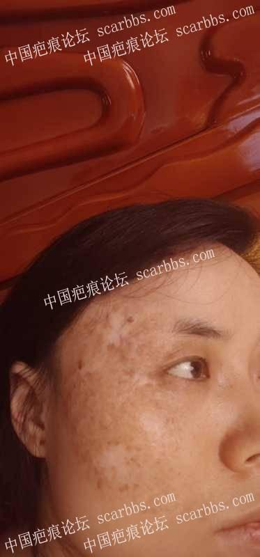 面部陈旧性的血管瘤疤痕,怎么祛除比较好?