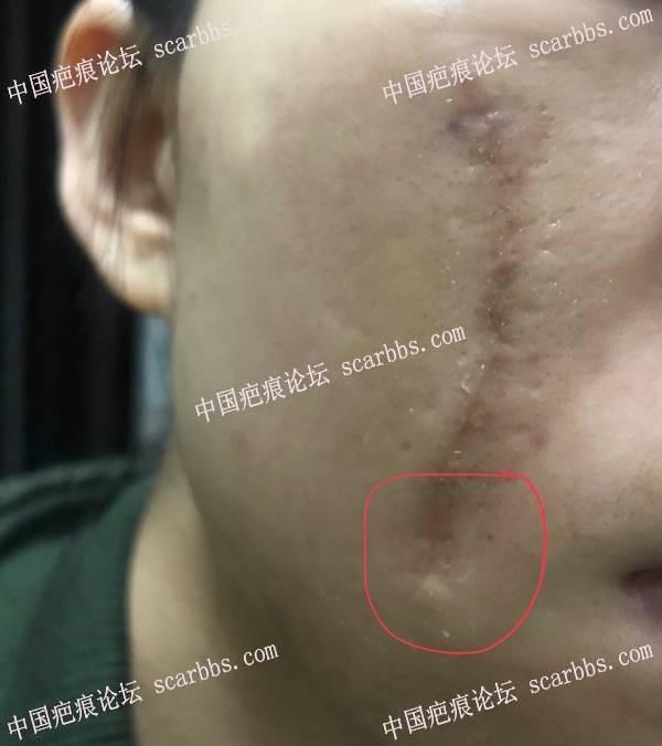 面部凹疤手术一个月,疤痕末端出现猫耳和局部凹陷