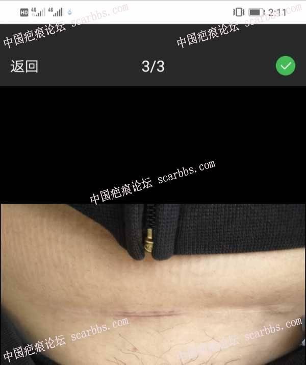 九院武晓莉做的剖腹产疤痕手术