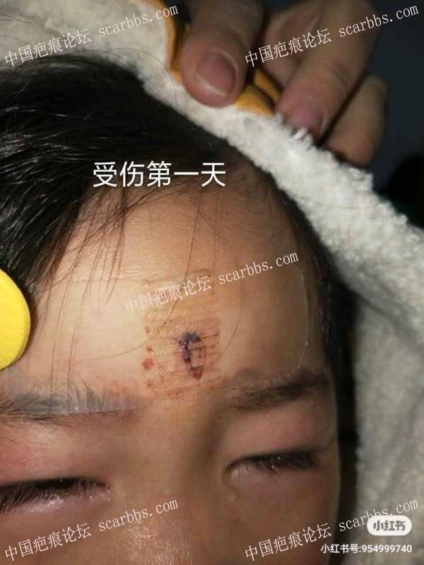 宝宝额头磕伤快三个月,有表情凹