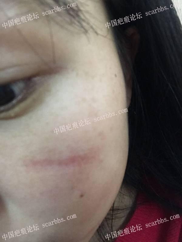 面部缝针疤痕已经快9个月了还发红