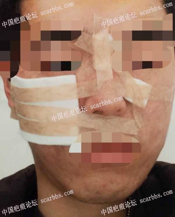 面部十年痘坑做的切缝治疗