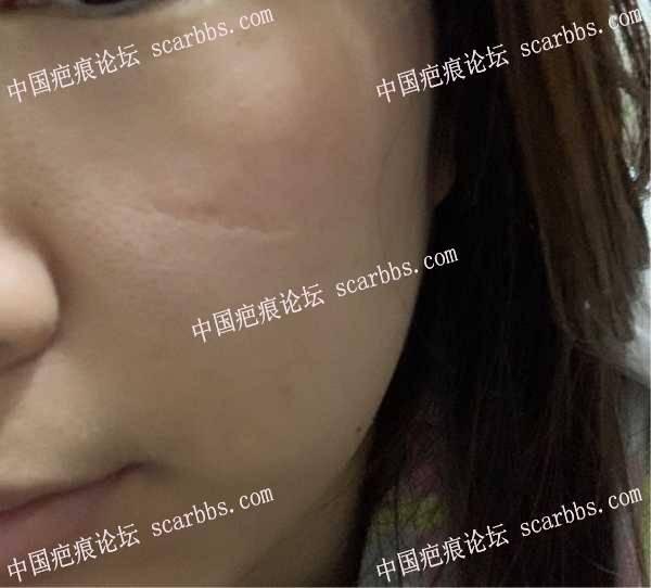 脸部陈旧凹陷疤痕,广州医生求推荐! 面部疤痕,凹陷疤痕,