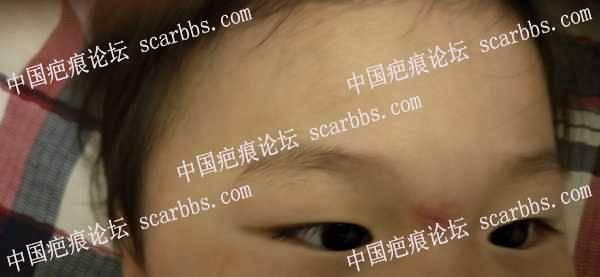 宝宝鼻梁磕伤一个月,有凹陷,应该怎么护理